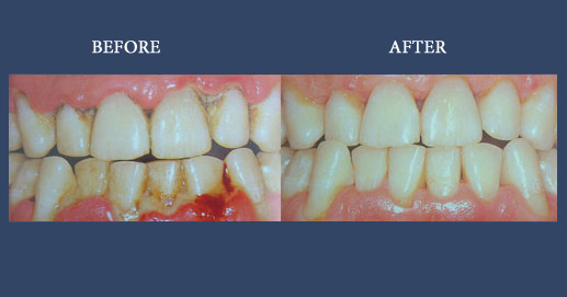Oral Hygiene and aesthetic composite fillings