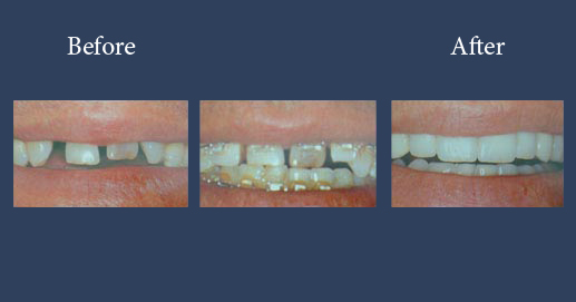 Targeted orthodontic case with lumineers