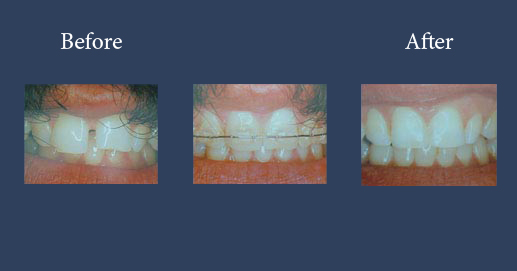 Orthodontics with cosmetic add-ons