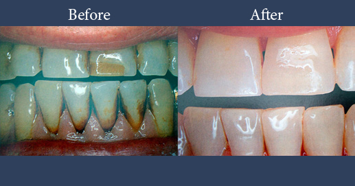 Various moments of teeth whitening