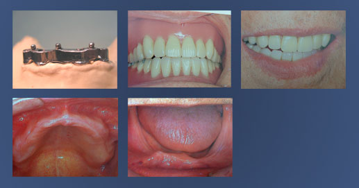 Removable dentures on bar and ball implants for retention